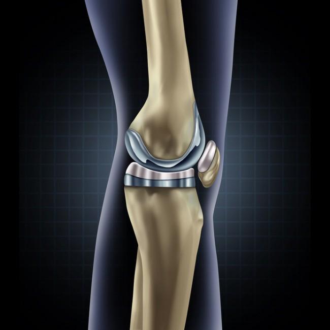Одновременное протезирование обоих коленных суставов синовит коленного сустава анализ жидкости из коленного сустава