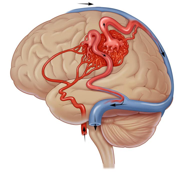 Артериовенозная мальформация | Ассута